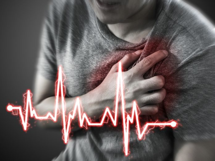 common heart attack signs symptoms